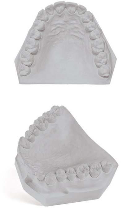 Mounting Stone Dental Gypsum