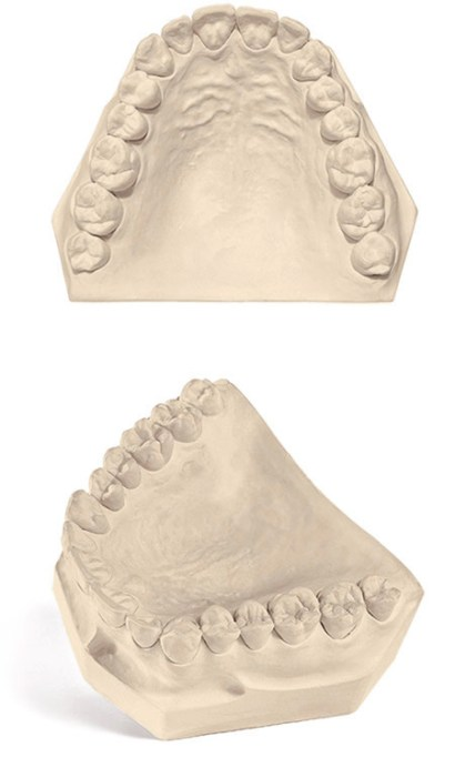 NaturalRock Dental Gypsum