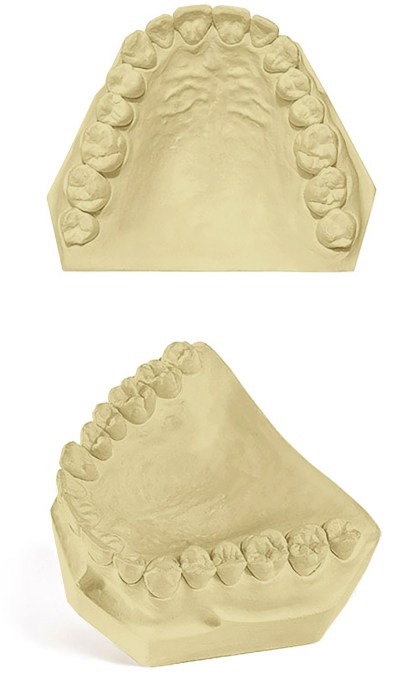 Pemaco Pemstone Dental Gypsum