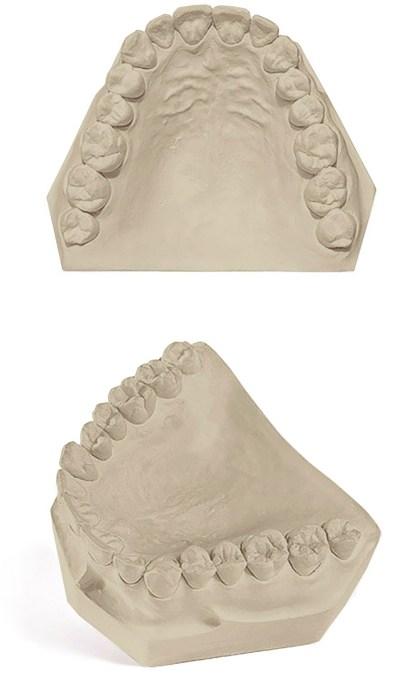 Pemaco Satin Stone Dental Gypsum
