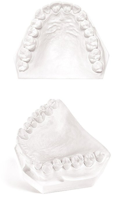 Pemaco Mounting Stone Dental Gypsum