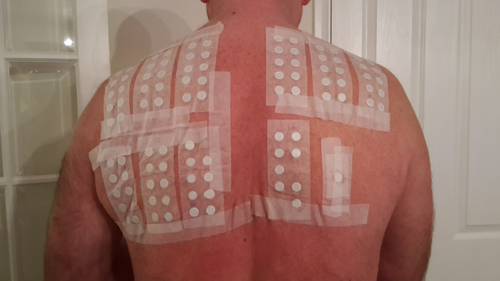 Patch testing on Garry's back