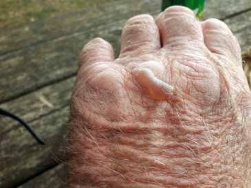 One of Garry's blisters, his reason for coming home from France
