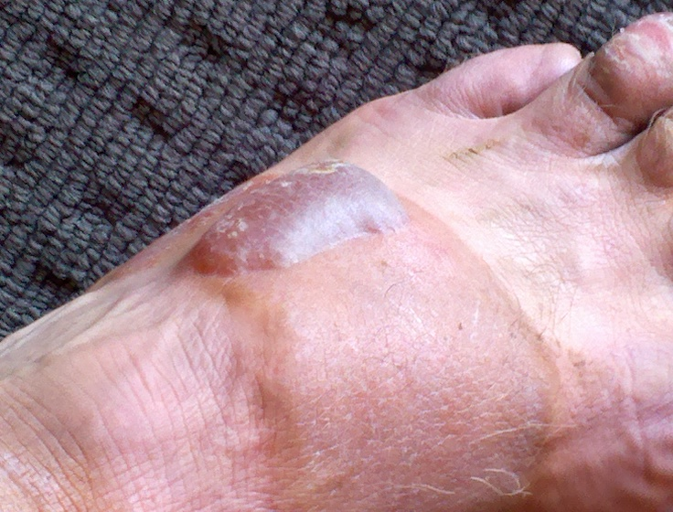 Garry McGivern's blistered foot
