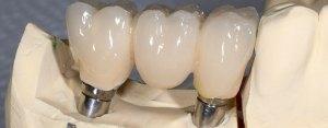 Dental Implants in St Louis