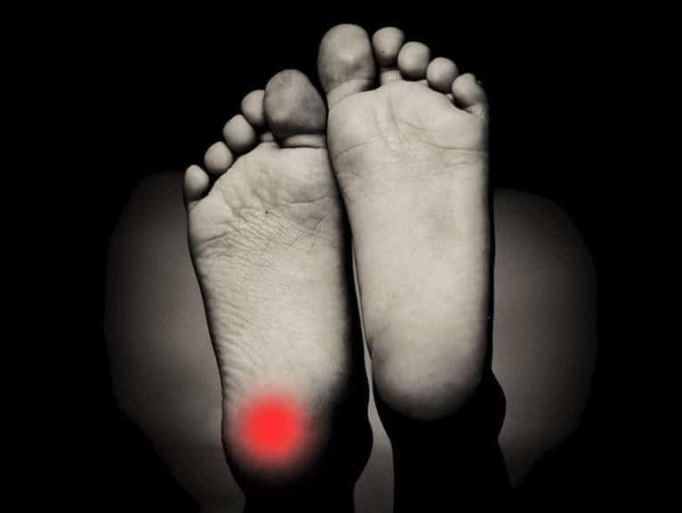 דורבן ברגל אבחנה מבדלת