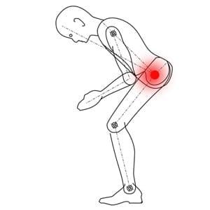 כאבים במפשעה ובמפרק ירך גורמים