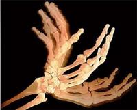 כאבים בגב כף היד מה הגורם