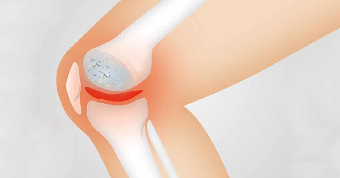 קליקים בברך אבחון וטיפול