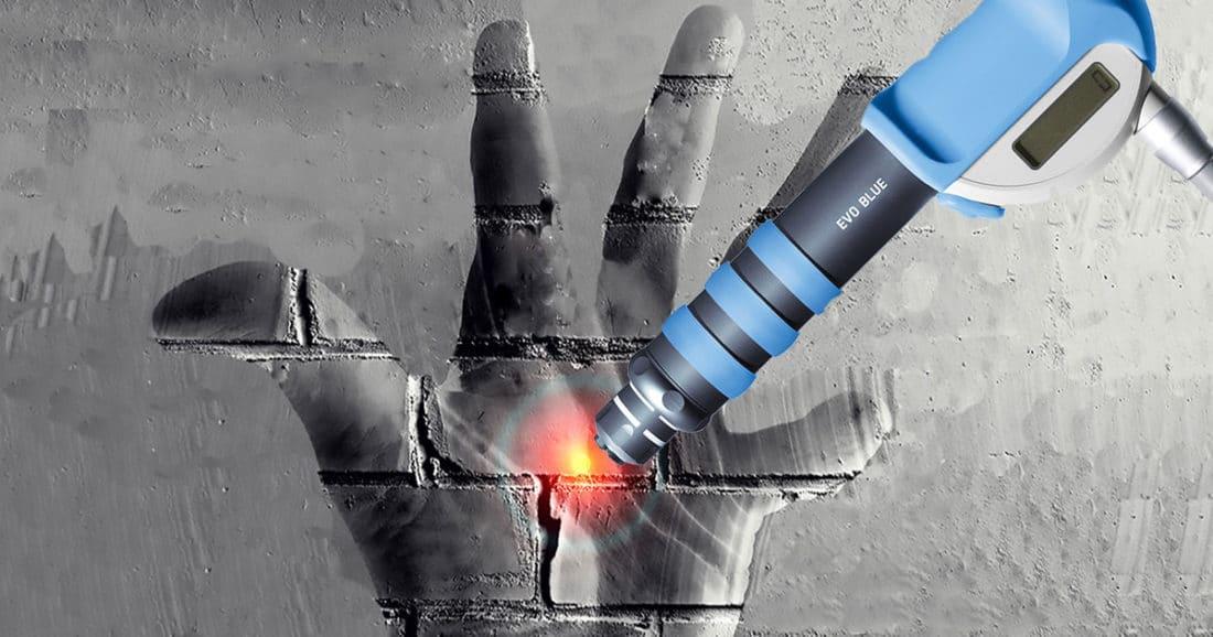 אצבע הדק חכו עם הניתוח