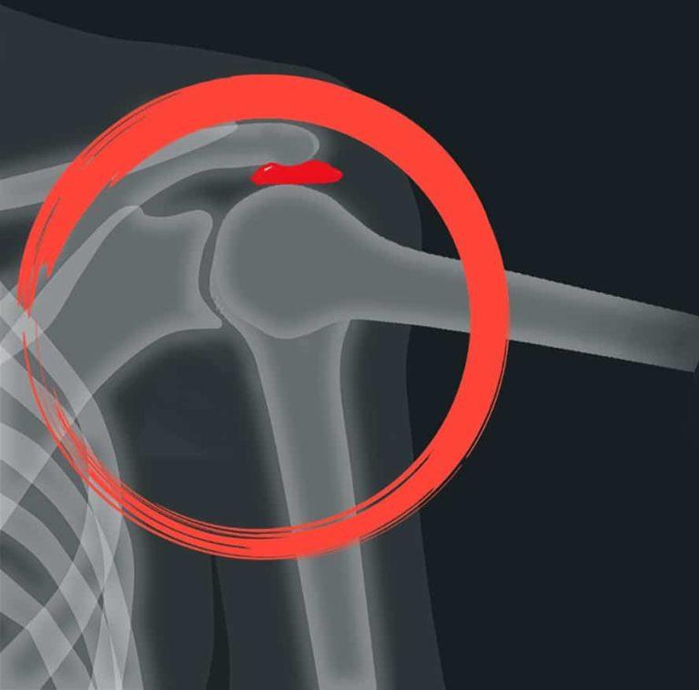 איך למנוע את תסמונת הצביטה בכתף