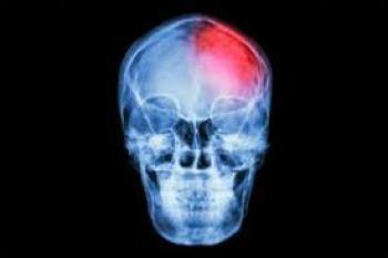brain injury lawyers nevada