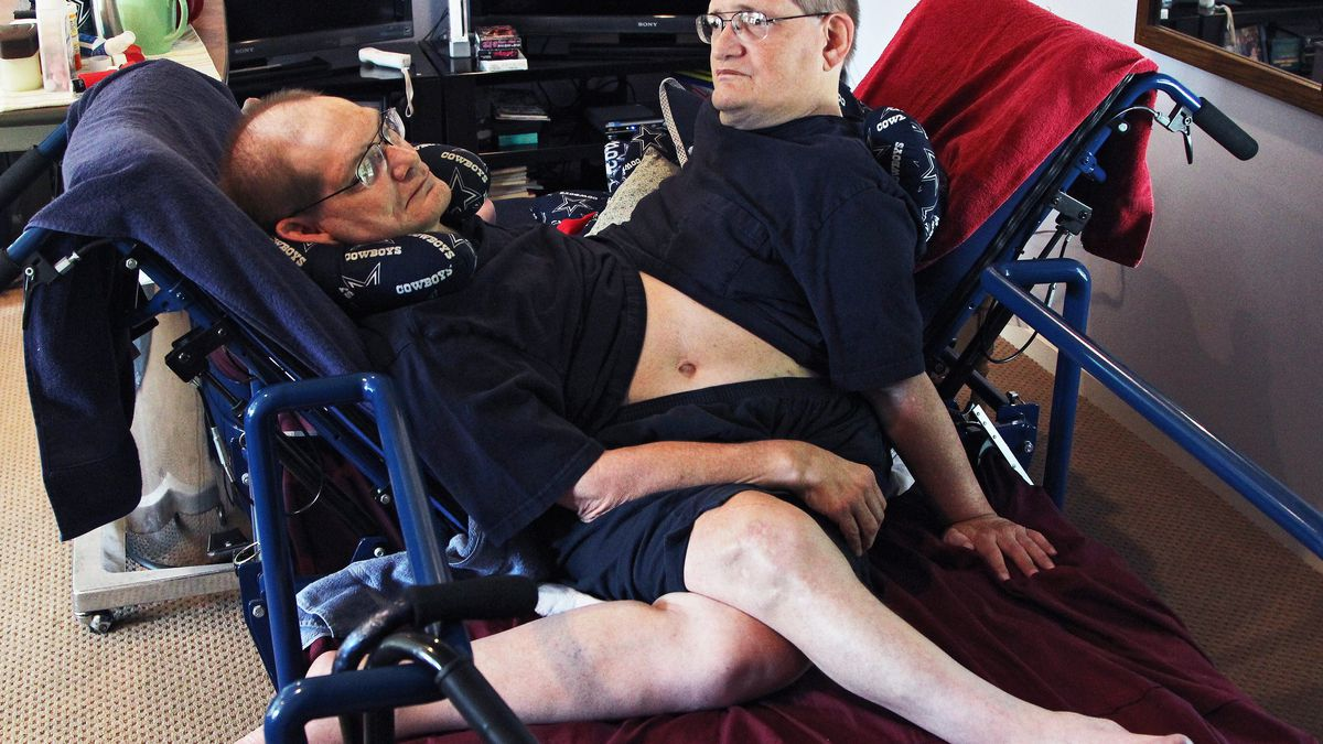 Oldest-ever conjoined twins Ronnie and Donnie dead at 68