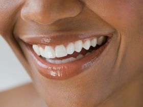 Whiter Teeth ? Here are Natural remedy for you