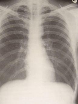 Zdjęcie rentgenowskie klatki piersiowej