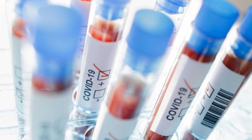 Coronavirus în România: Bilanțul cazurilor a ajuns la 17.387