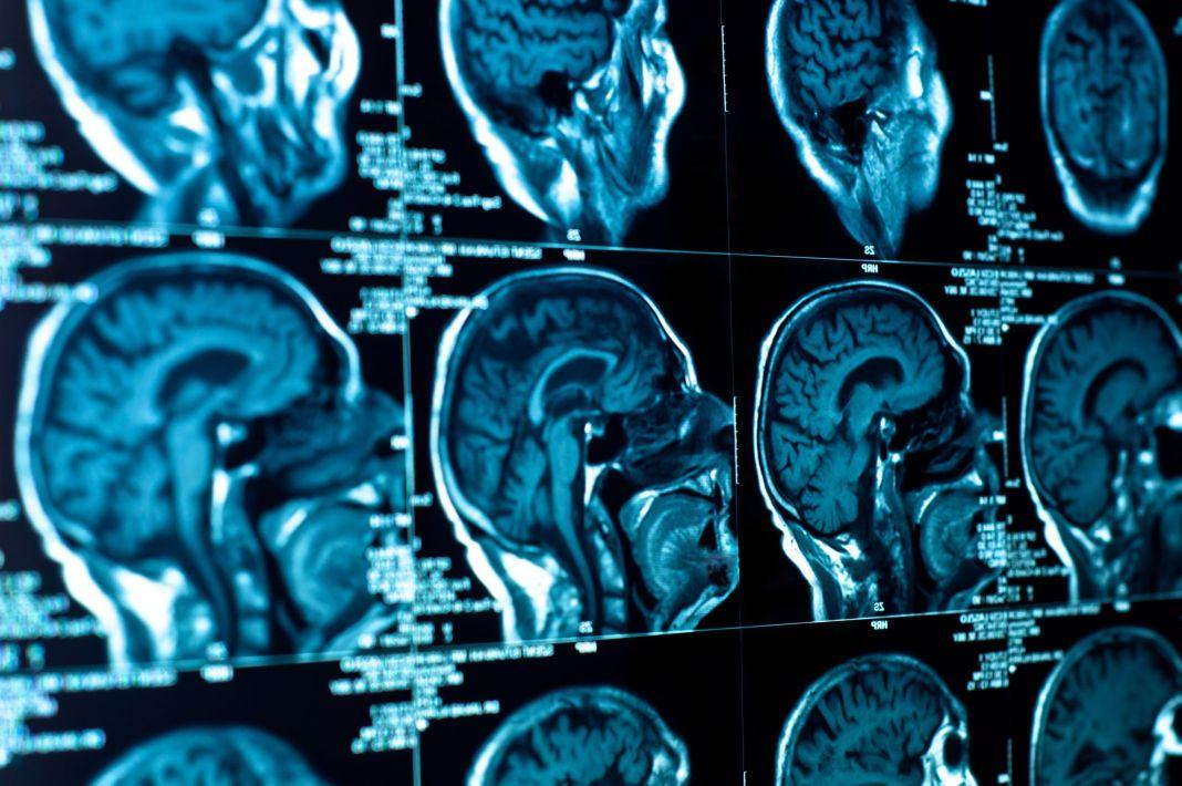 O tomografie computerizată a dezvăluit că bărbatul avea o rană la platoul cribriform