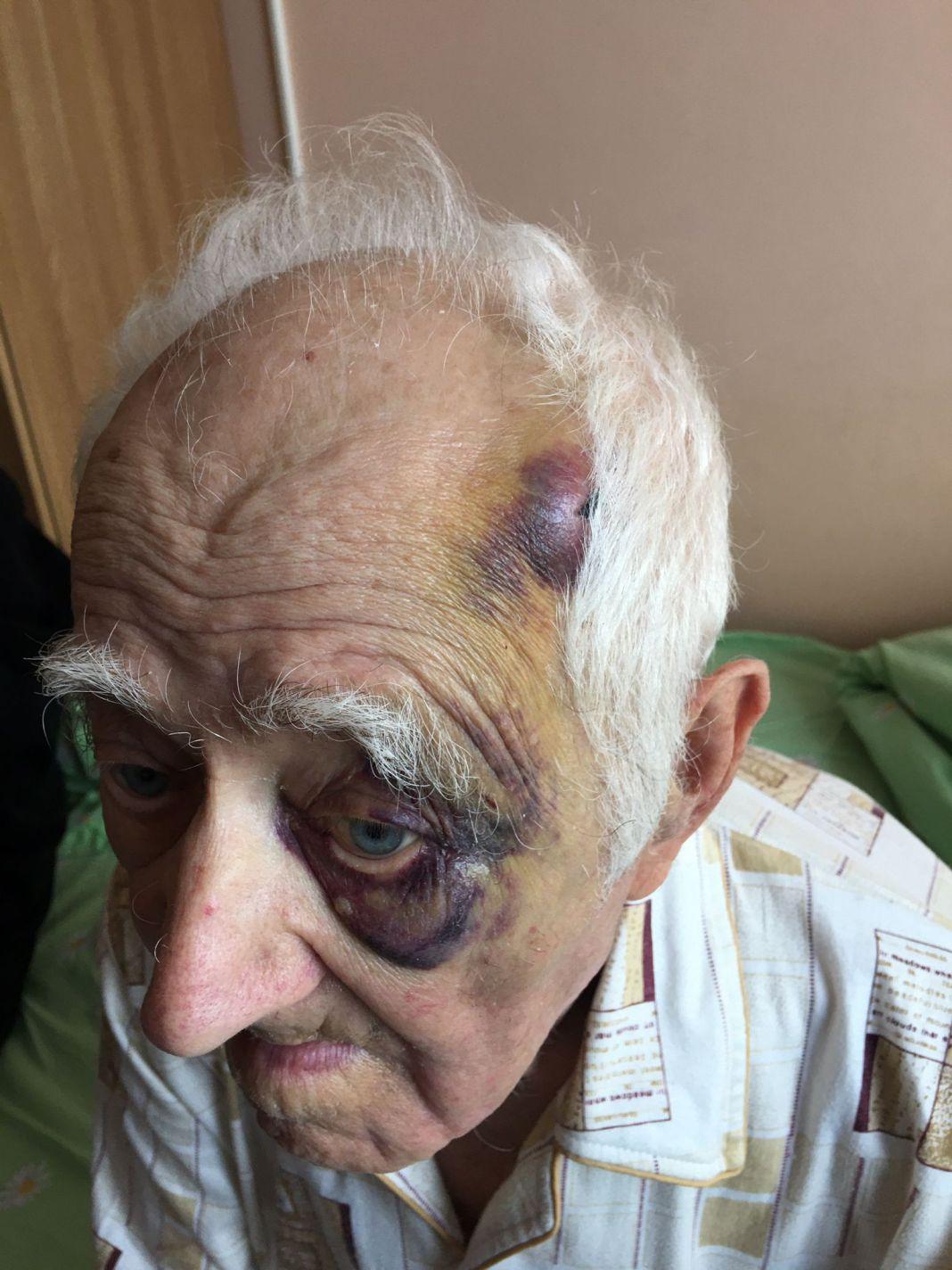 IPJ Gorj face verificări în cazul nonagenarului cu COVID, externat cu lovituri