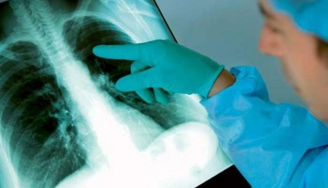 Numărul deceselor cauzate de tuberculoză, din nou în creştere