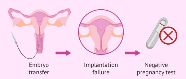 tekrarlayan tüp bebek başarısızlığı