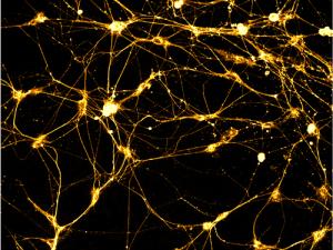 neural_spiderwebs