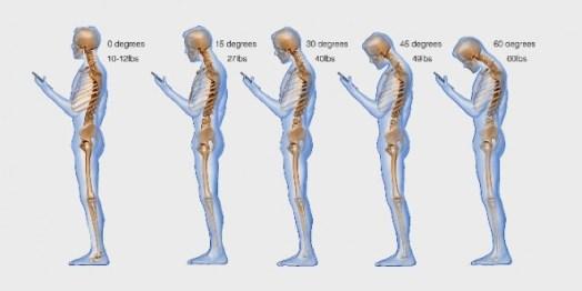 Text-neck-smartphones-660x330