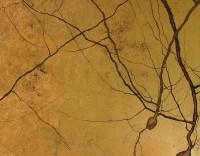 UCSD_purkinjes_closeup-600x468