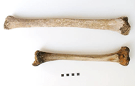 Ancient giant's tibia compared to normal size tibia