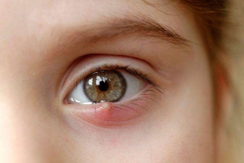 Painful Stye On Your Eye