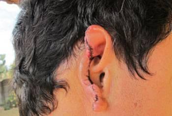 Homofobia: Confundidos com casal gay, pai e filho são espancados em São Paulo