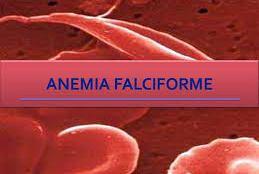 Anemia falciforme atinge o sangue dificulta a oxigenação