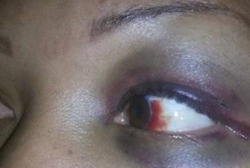 Cantora usa o Facebook para denunciar agressão do namorado