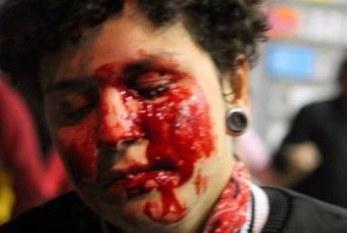 Ferida em ato contra posse de Michel Temer diz que perdeu a visão do olho esquerdo