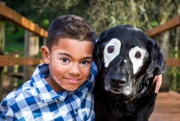 Menino e cachorro com vitiligo viram amigos