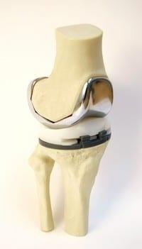 Kniegelenksverschleiß (Gonarthrose): Prothese