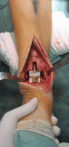 Intraoperatives Bild einer eingebauten Prothese