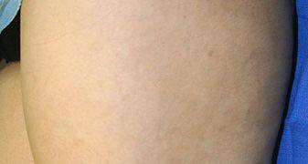schlerotherapy