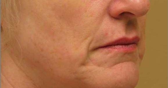 titan dermatologist jupiter fl