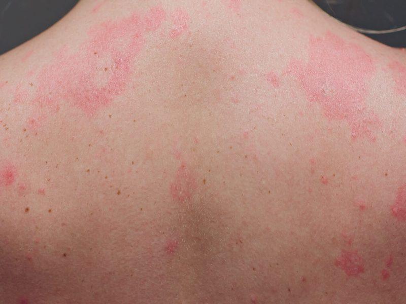 COVID skin conditions