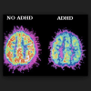 Does poor motivation or 'bad parenting' cause ADHD? Studies say it's in the brain structure
