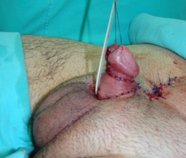 Appearance Of The Penis After Reassembly Penis Is Lengthened Urethra Is Placed At The Base Of The Penis For The Second Stage Reconstruction