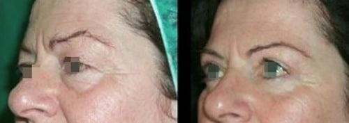 blefaroplastica foto prima e dopo