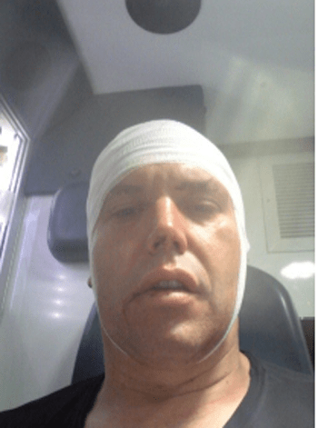 Self-portrait from the ambulance after my assault...