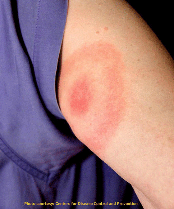 The characteristic bull's-eye patterned rash after the bit from a blacklegged tick infected with Borrelia burgdorferi. Photo: Centers for Disease Control