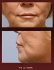 Lip Enhancement (Post-op)