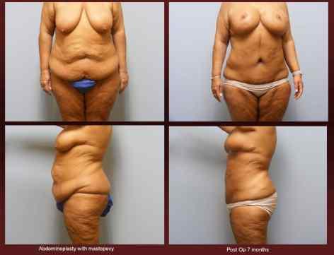 Adomioplasty at georgetown plastic surgery