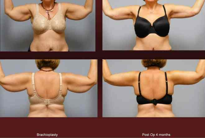 Arm Lift at Georgetown Plastic Surgery