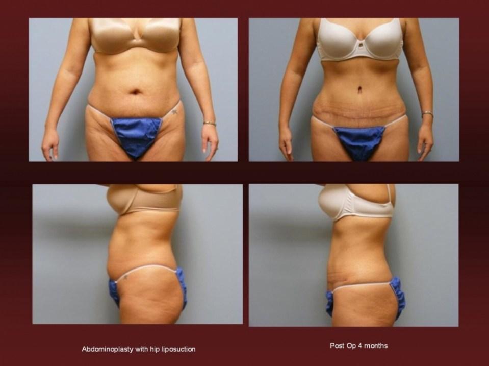 Abdomniplasty at Georgetown Plastic Surgery