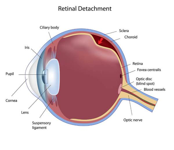 Retinal Detachment | Georgia Eye Associates