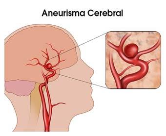 Image result for aneurisma